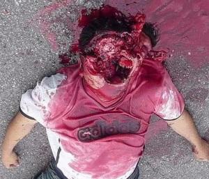 shotgun-wound-face-gruesome-victim-